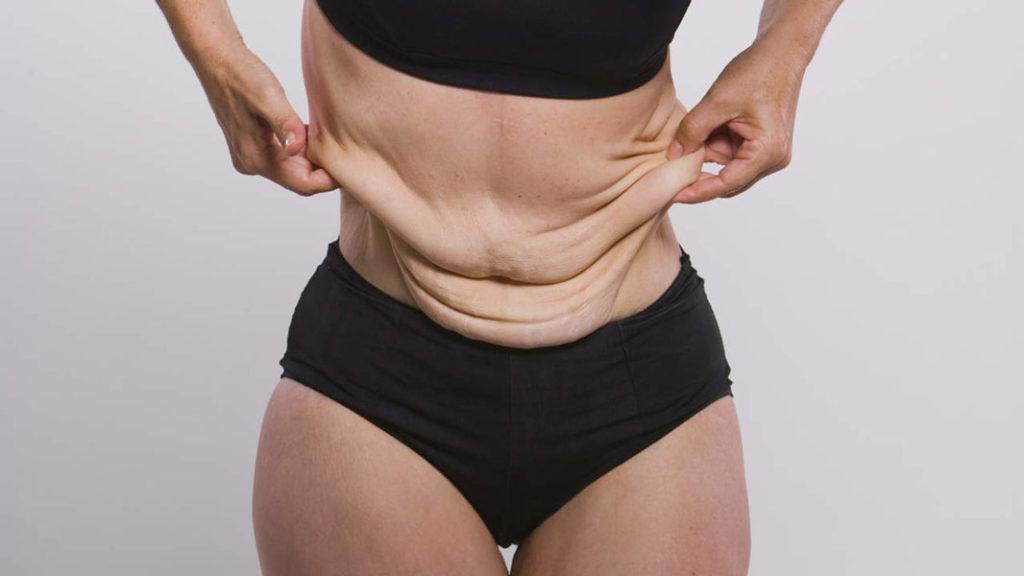 Як швидко прибрати розтяжки на шкірі від різкого скидання ваги?
