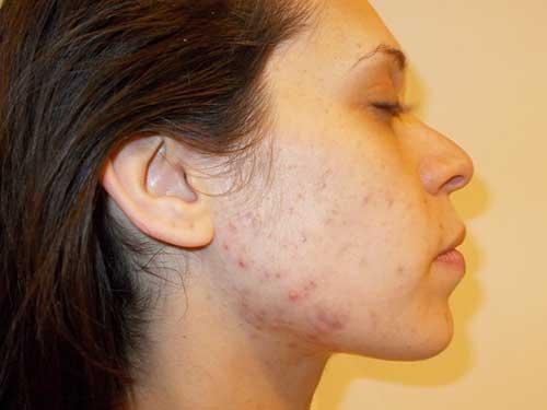 Який крем потрібен шкірі в 20 років?