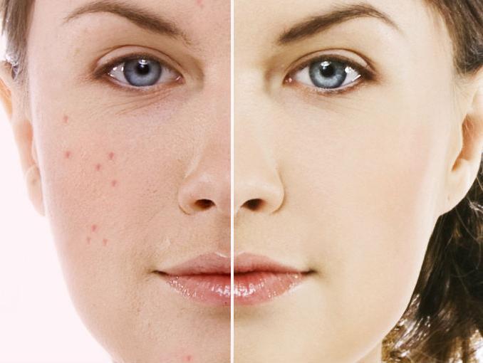 Який засіб швидко загоює рани від прищів на обличчі